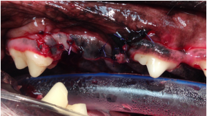 fractured teeth tph